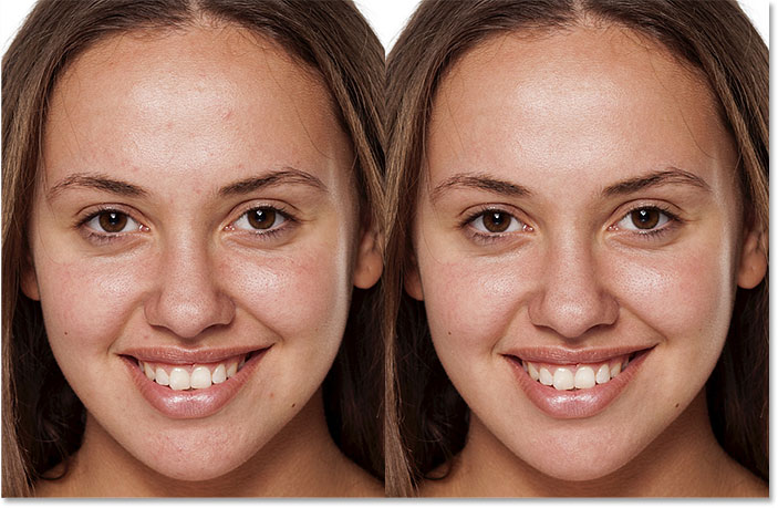 A before and after comparison of the skin cleanup with the Spot Healing Brush in Photoshop