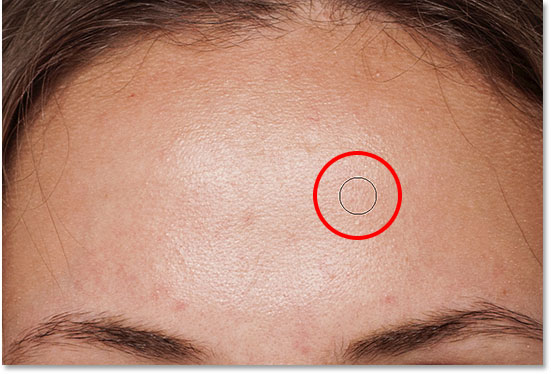 Clicking with the Spot Healing Brush to remove the skin blemish
